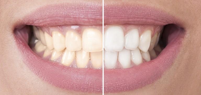 Blanqueamiento dental en Navalcarnero