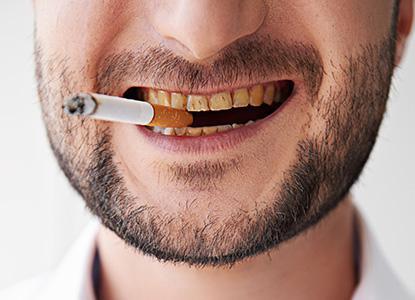 Los dientes y el tabaco